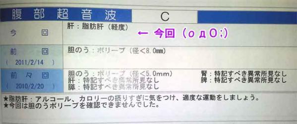 腹部超音波(クリックで画像を拡大する)