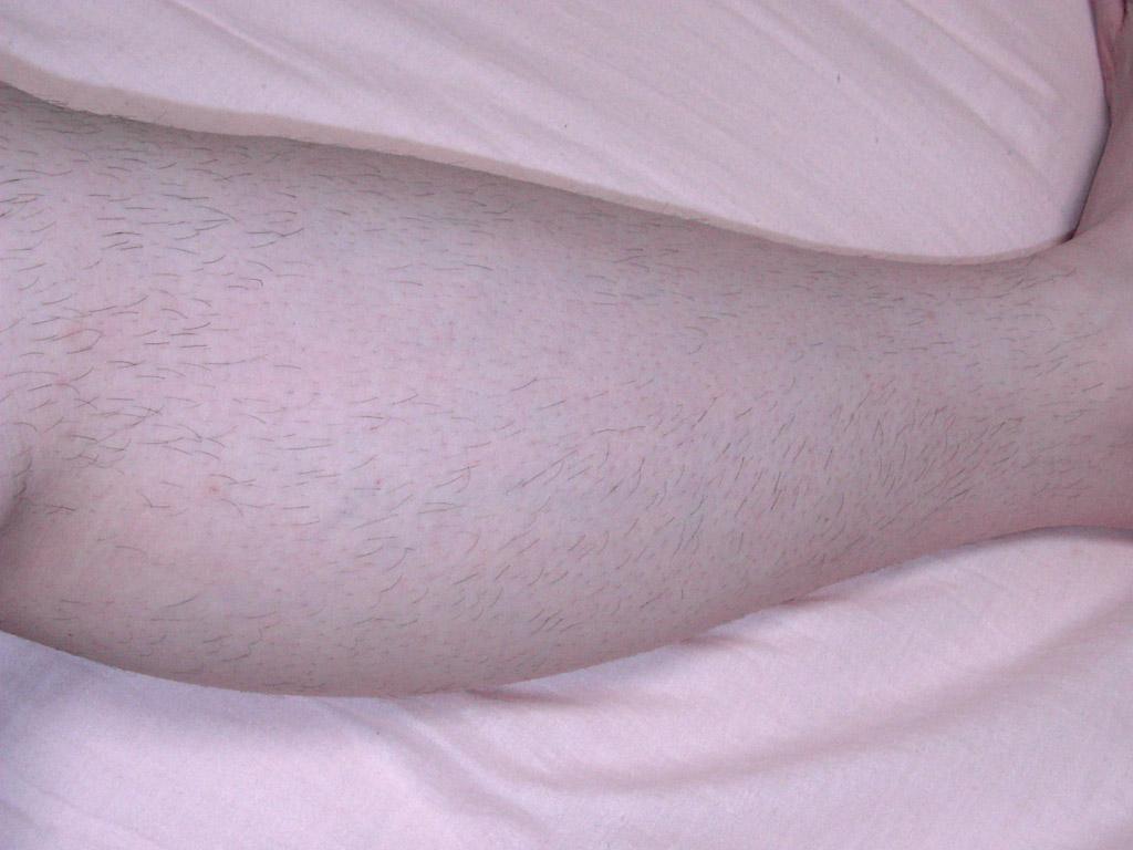 左足のスネ毛