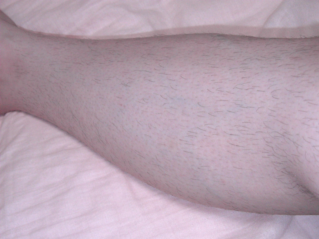 右足のスネ毛