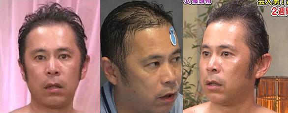 岡村隆史 頭髪