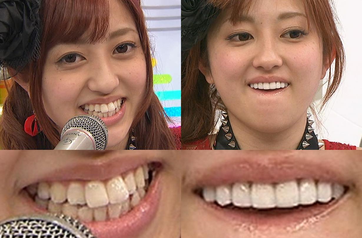 アイドリング 菊地亜美 歯