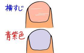 爪のサイン2