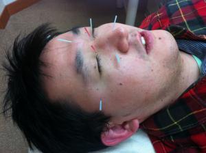 花粉症の鍼治療大阪市旭区千林大宮のしおかわ鍼灸整骨院グループです。