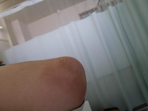 肘の変色2