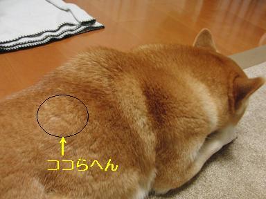 背中のぽっちの痕