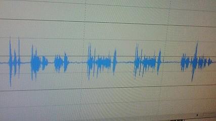 音声パターン