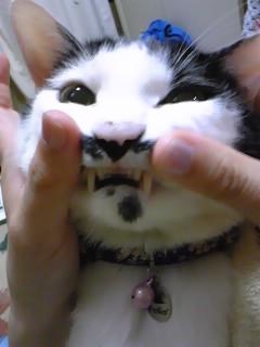 こころの歯