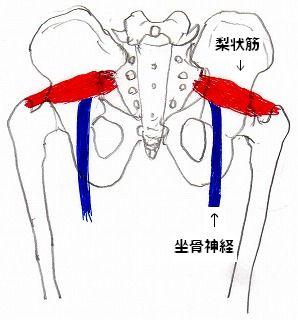梨状筋と坐骨神経の位置