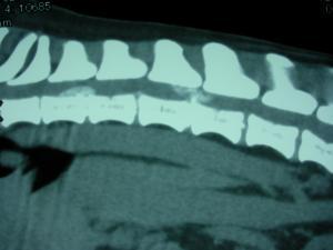 両側椎間板ヘルニア ct画像