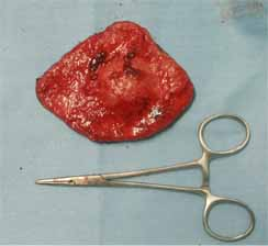 犬の肥満細胞腫3