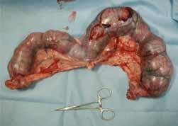 今日の手術3