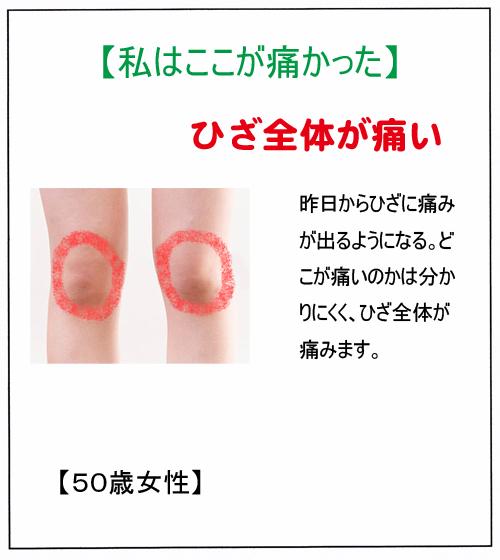 ひざ痛:T