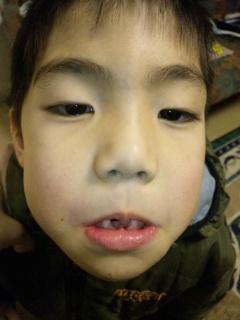 コウダイの歯