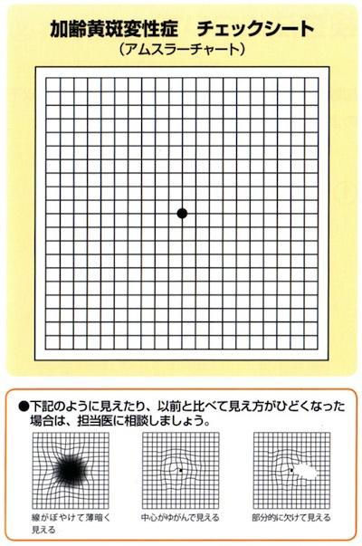 amsler_chart_2.jpg